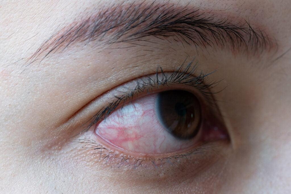 Close up of a severe bloodshot eye