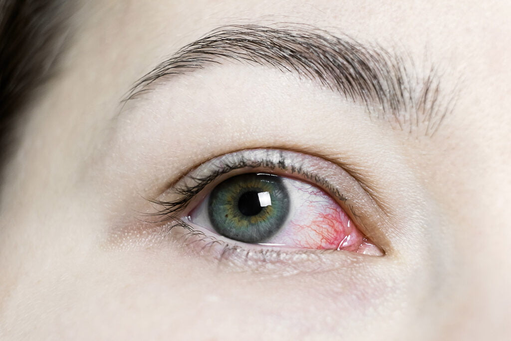 Close up of woman with red bloodshot eye