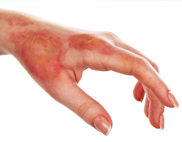 Hand burn
